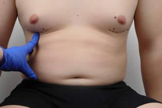 gynecomastia surgery