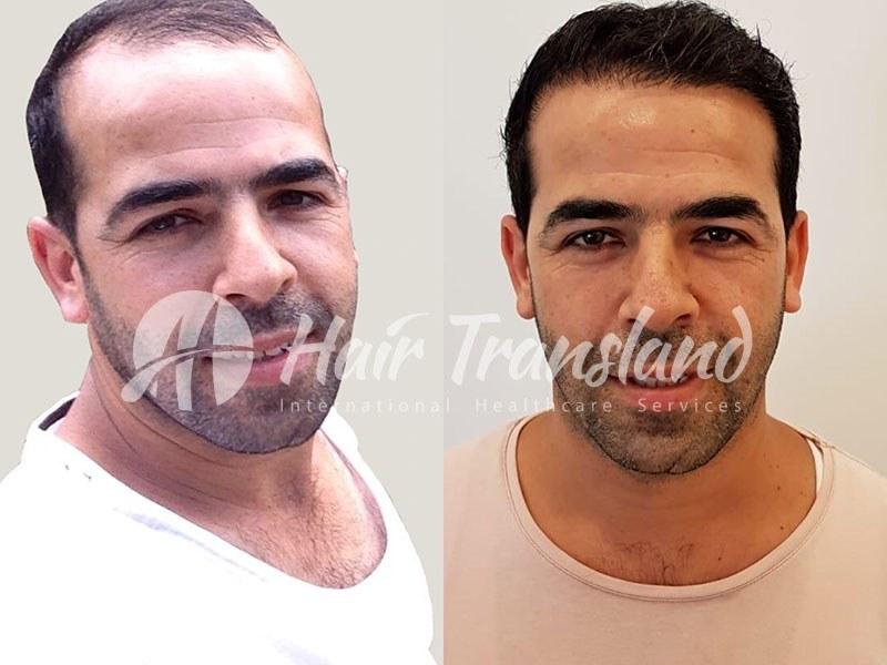 hair transplant photo 4