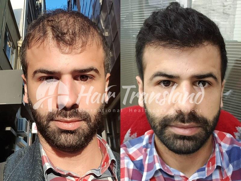 hair transplant photo 3
