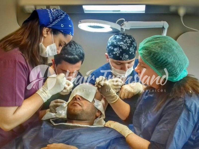 hair transplantation 4