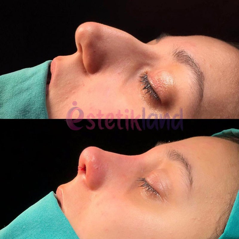 rhinoplasty photo 3