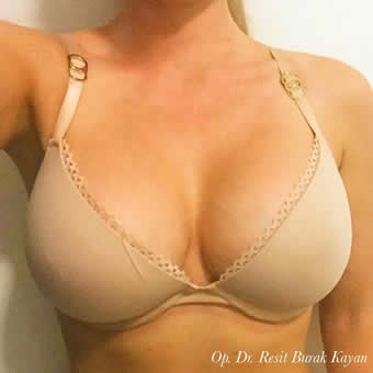 breast enlargement5
