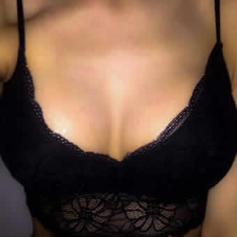 breast augmentation2