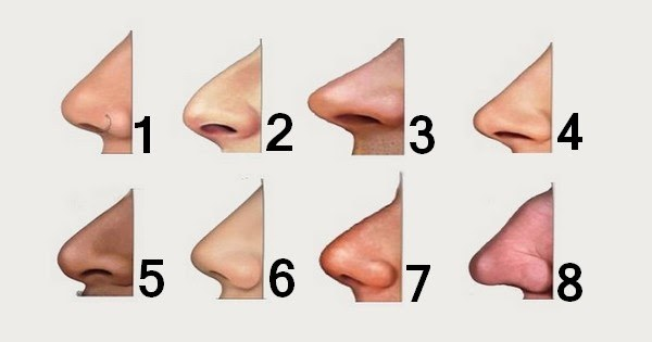 Nose Types for Rhinoplasty