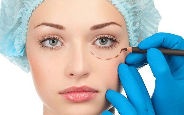 eyelid surgery tips